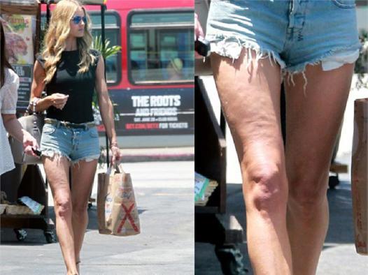short cellulite