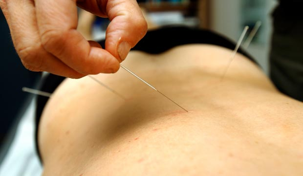acupuncture mal de dos