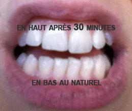 avis blanchiment dentaire