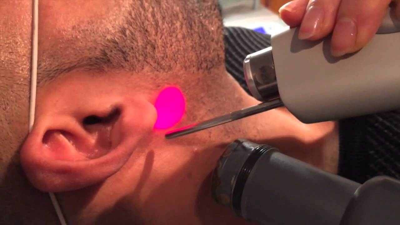 barbe au laser