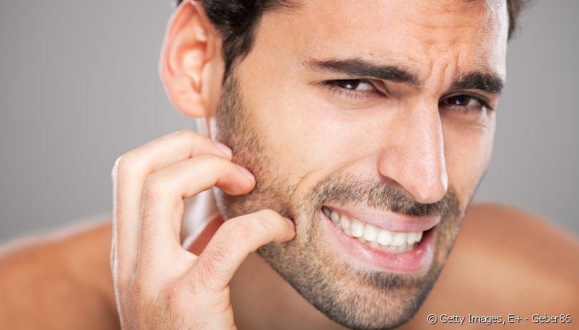 barbe qui démange