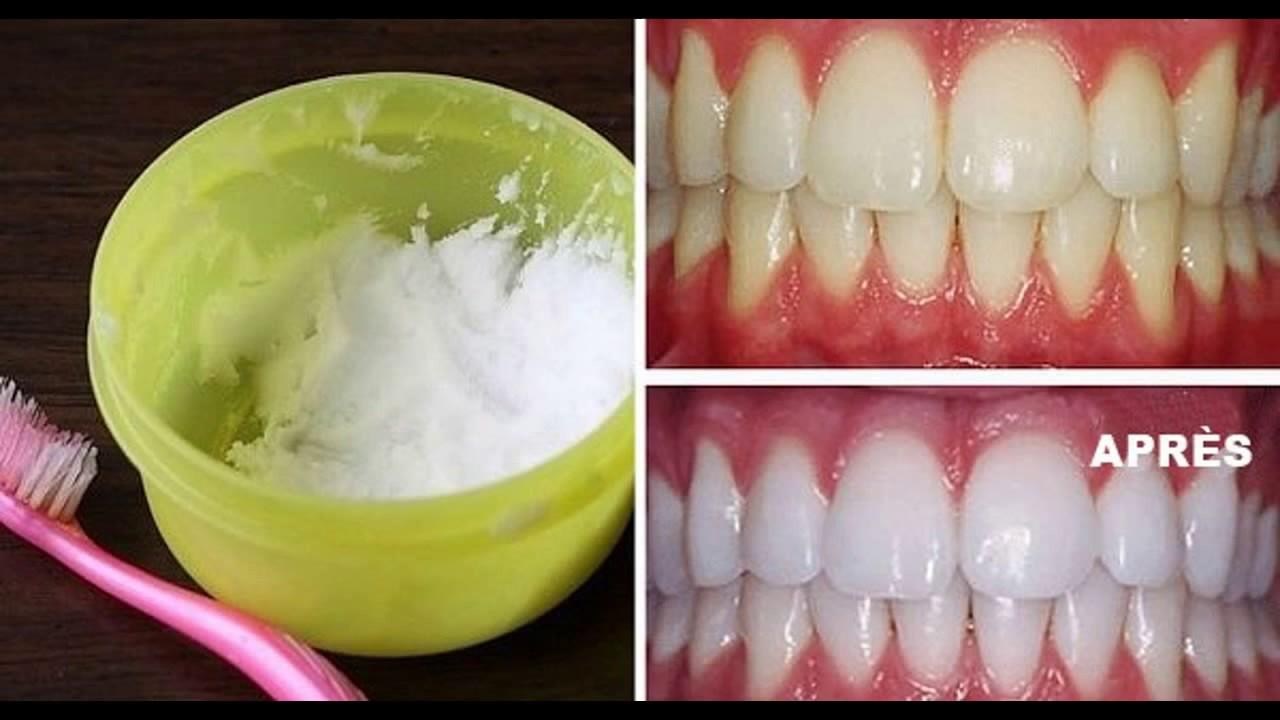 bicarbonate de soude dent