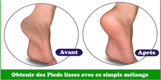 bicarbonate de soude pieds