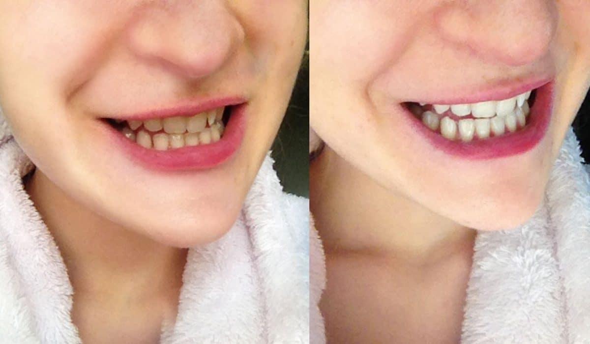charbon pour les dents avis