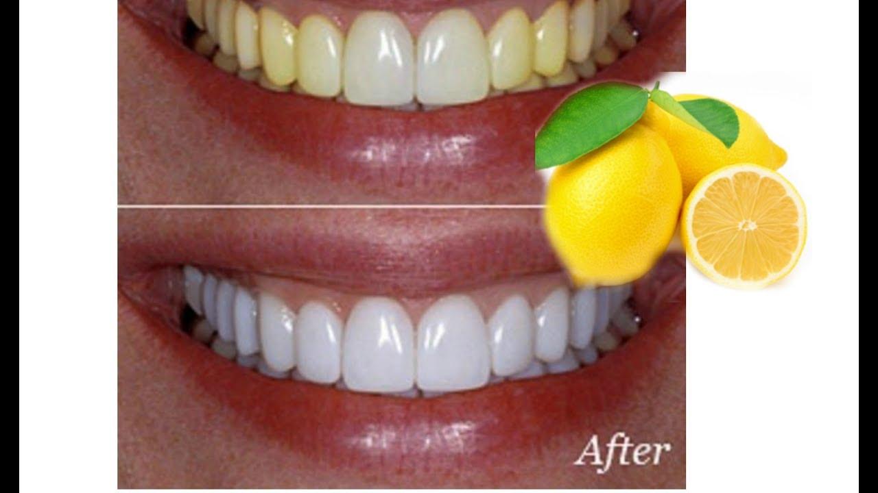 comment blanchir les dents