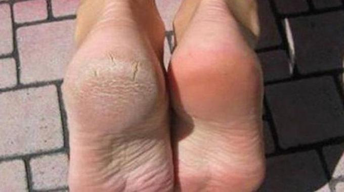 enlever corne pied
