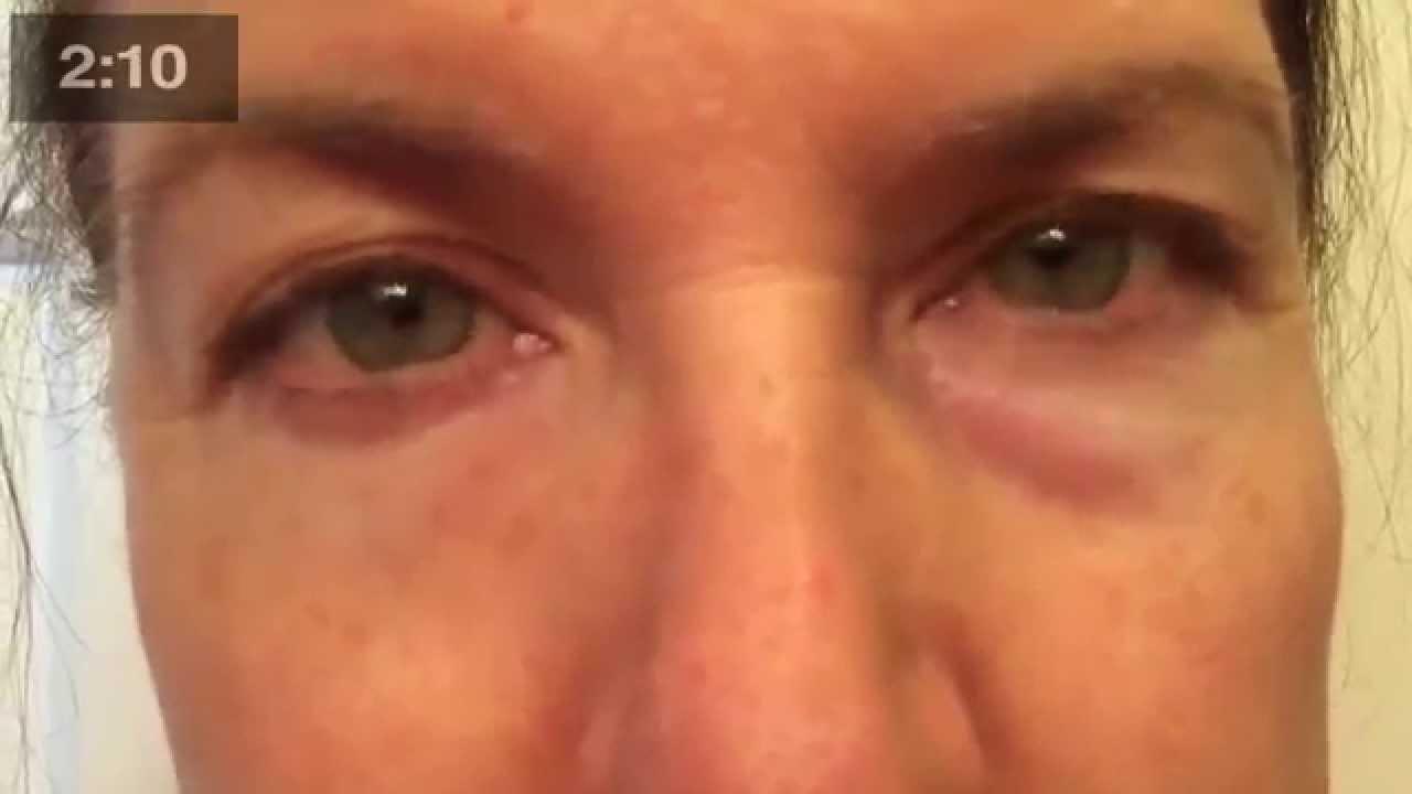 enlever poches sous les yeux