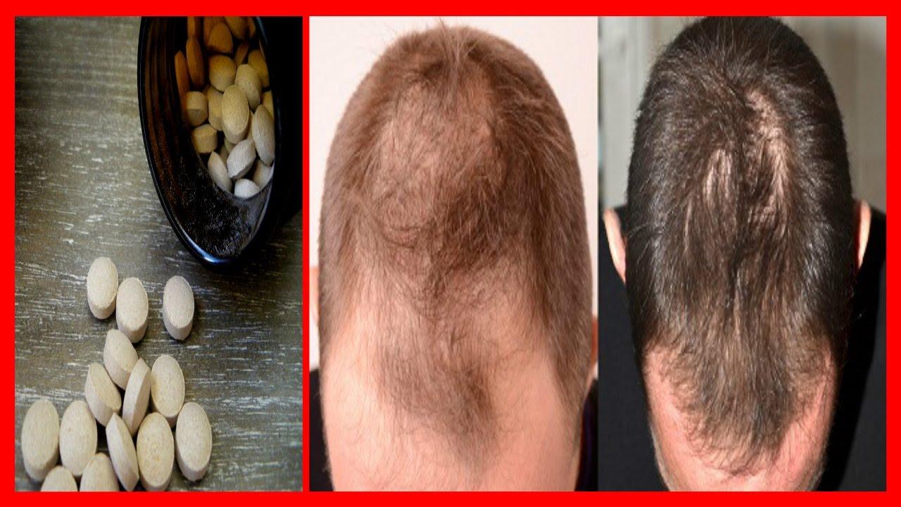 levure de biere cheveux