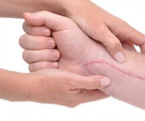 massage cicatriciel