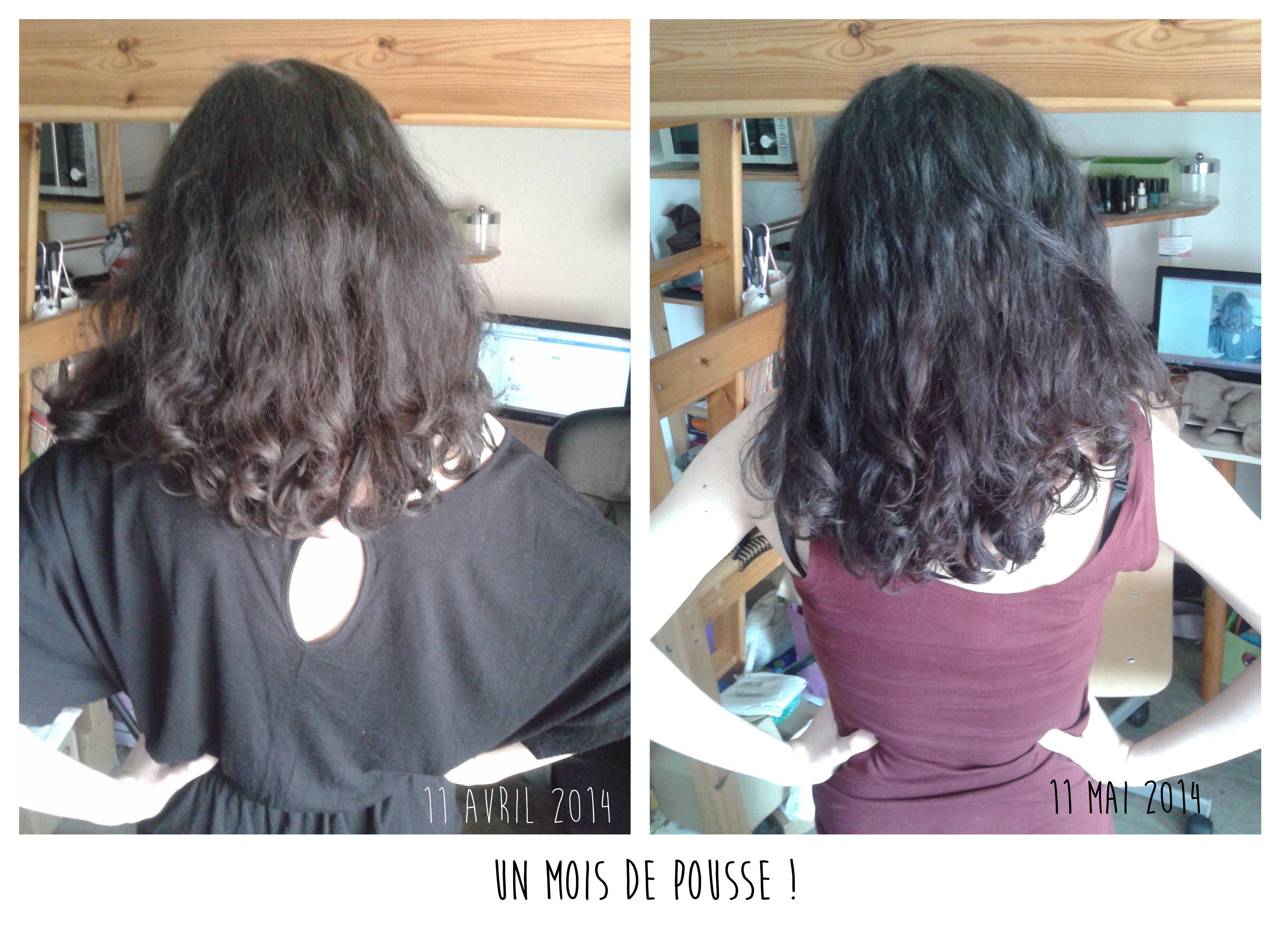 ortie pousse cheveux
