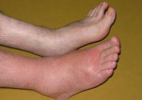 pied douloureux et gonflé